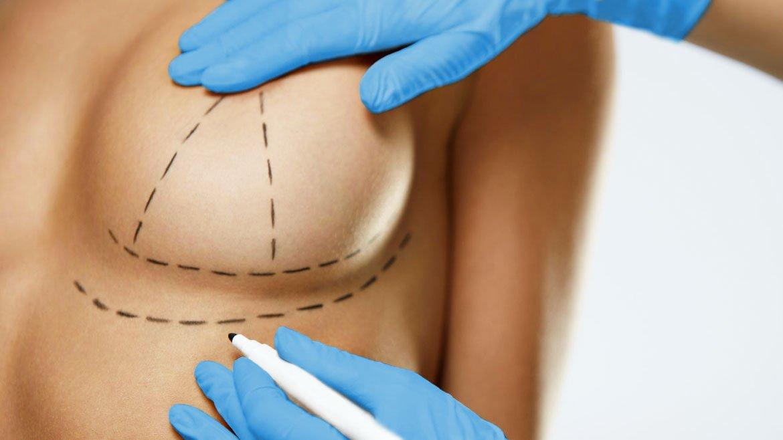 precio levantamiento de senos colombia