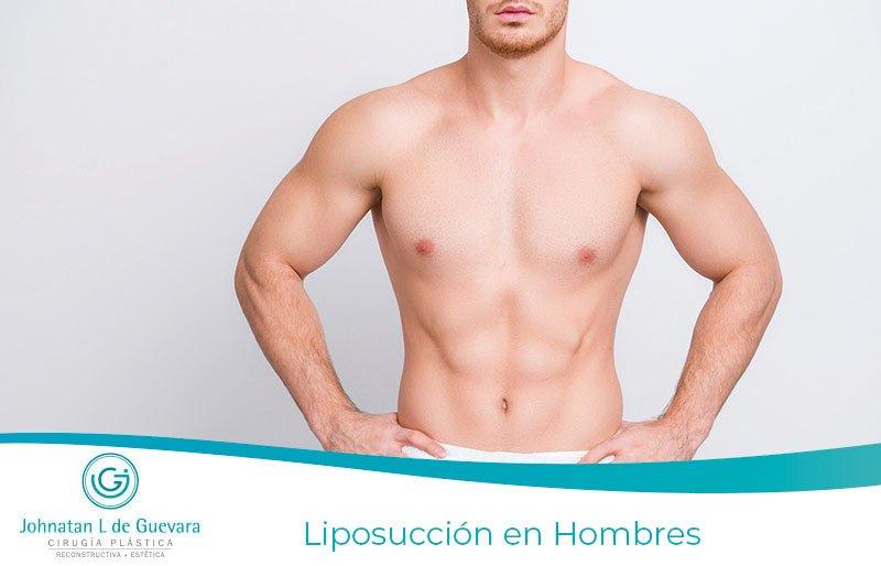 Liposucción en Hombres