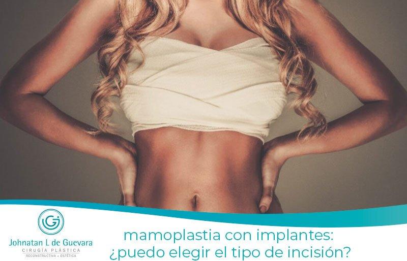 Mamoplastia con implantes: ¿puedo elegir el tipo de incisión?