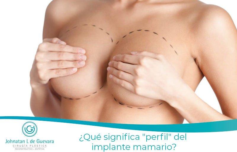 """¿Qué significa """"perfil"""" del implante mamario?"""