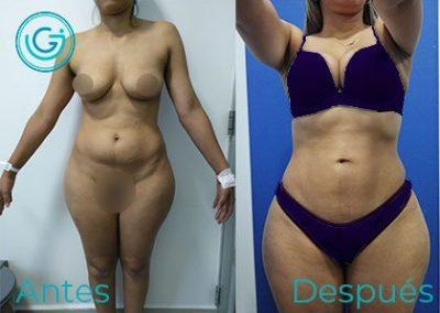 cirugia plastica bogota liposuccion