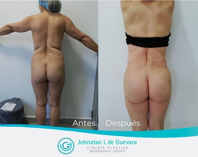 Liposucción o lipoescultura en Bogotá lipectomia bogota fotos antes y despues