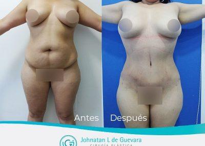lipoadbominoplastia-bogota-colombia-fotos-antes-despues