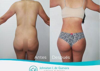 lipoinyeccion-bogota-colombia-fotos-antes-despues