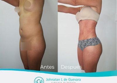 lipoinyeccion-bogota-fotos-antes-despues-1
