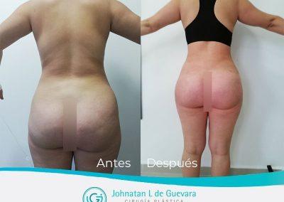 lipoinyeccion-bogota-fotos-antes-despues (1)