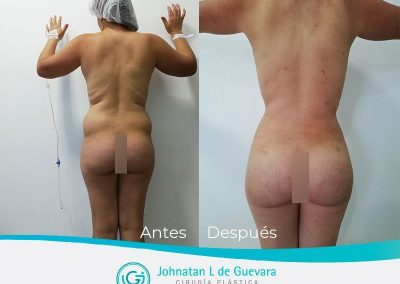 lipoinyeccion-glutea-antes-y-despues