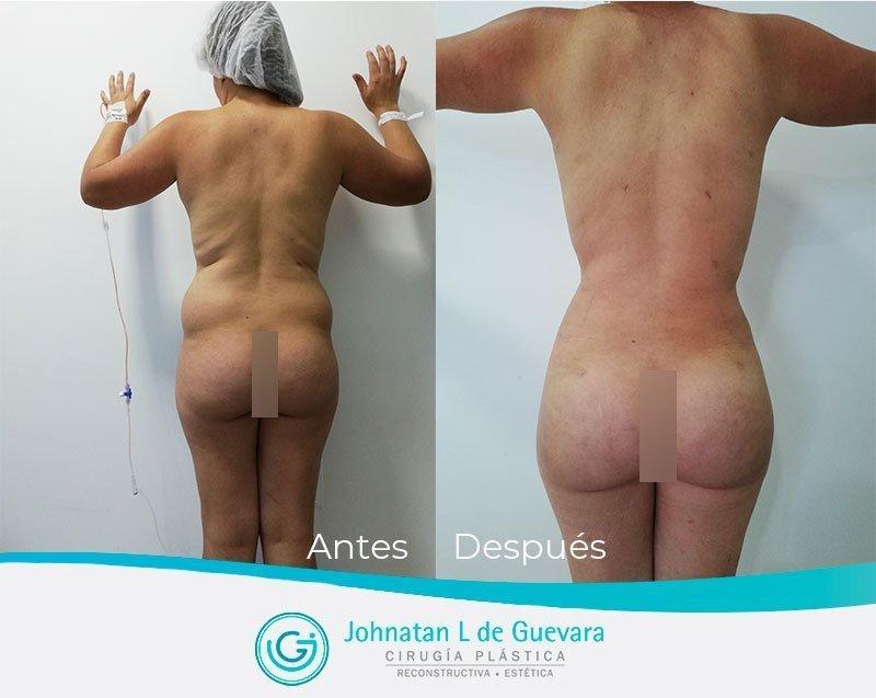 Liposucción o lipoescultura en Bogotá lipoinyeccion glutea antes y despues