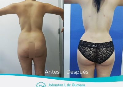 lipoinyeccion-glutea-fotos-antes-y-despues-bogota-colombia-1