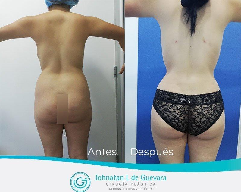Liposucción o lipoescultura en Bogotá lipoinyeccion glutea fotos antes y despues bogota colombia 1