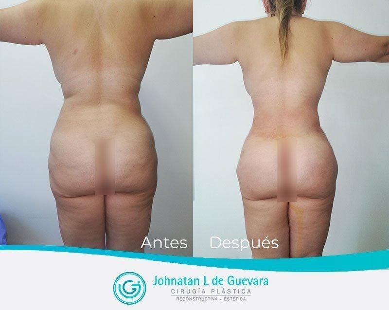 Liposucción o lipoescultura en Bogotá lipoinyeccion glutea fotos antes y despues bogota