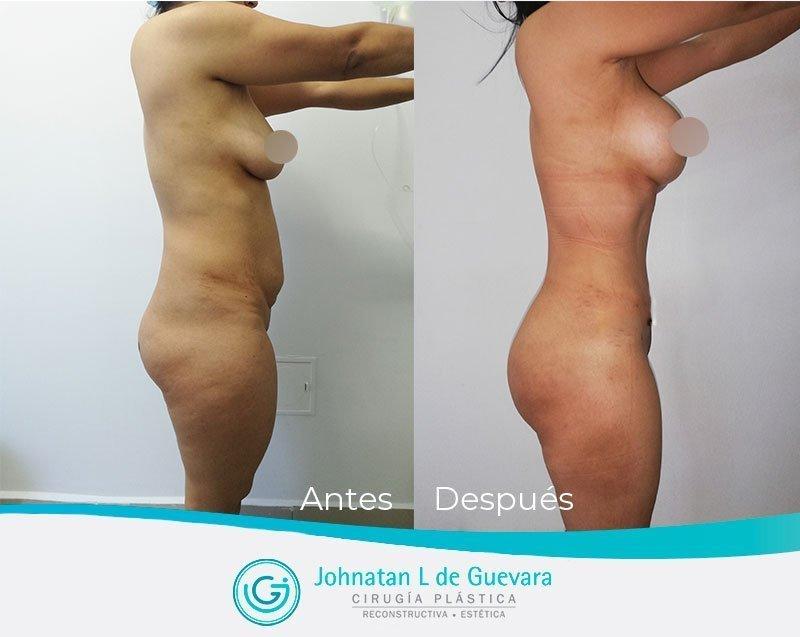Liposucción o lipoescultura en Bogotá liposuccion bogota antes y despues