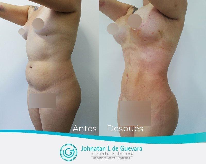Liposucción o lipoescultura en Bogotá liposuccion bogota fotos antes despues