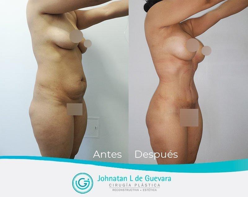 Liposucción o lipoescultura en Bogotá liposuccion bogota fotos antes y despues 1