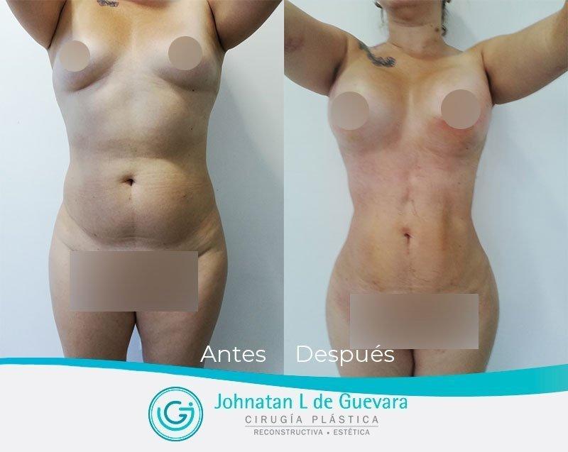 Liposucción o lipoescultura en Bogotá liposuccion bogota fotos antes y despues