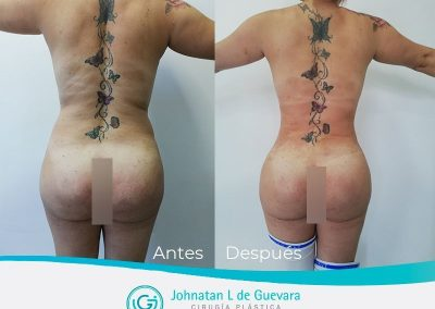 liposuccion-fotos-antes-despues