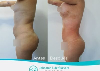 liposuccion-fotos-antes-y-despues