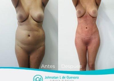liposuccion y lipoinyeccion glutea bogota colombia
