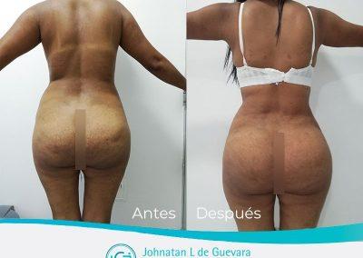 lipotransferencia-glutea-bogota-colombia-antes-y-despues