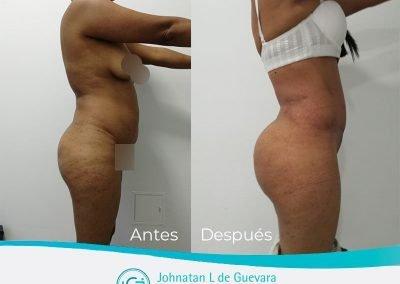 lipotransferencia glutea bogota colombia fotos antes y después