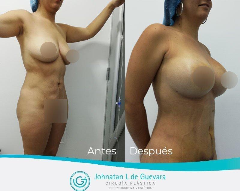 Pexia mamaria o levantamiento de senos Bogotá mastopexia bogota colombia con implantes fotos antes y despues
