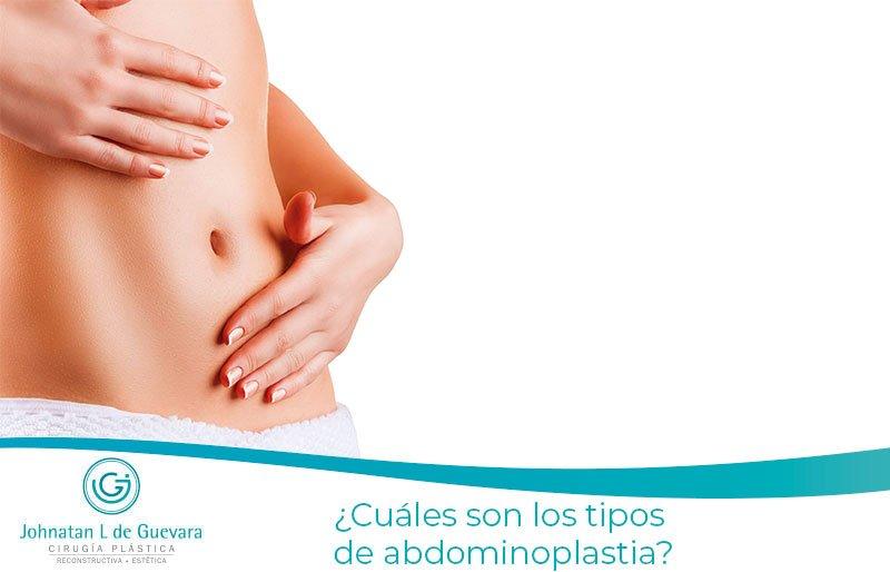 ¿Cuáles son los tipos de abdominoplastia?