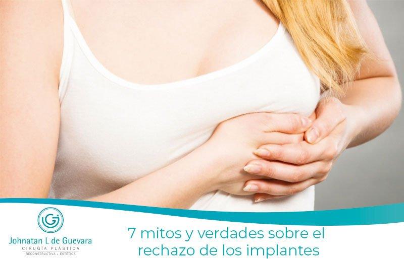 7 mitos y verdades sobre el rechazo de los implantes
