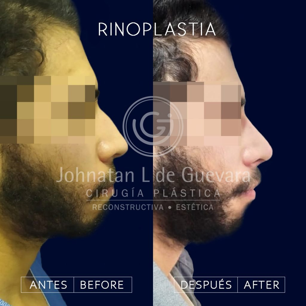 Rinoplastia en Bogotá fotos rinoplastia 3
