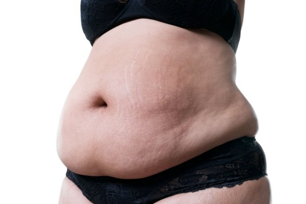 Am I too fat for a Tummy Tuck?
