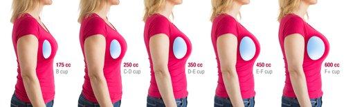 Breast Implant size comparison