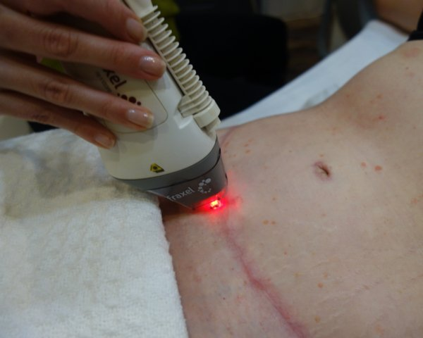 abdominoplasty-scar-after-Tummy-Tuck-fraxel