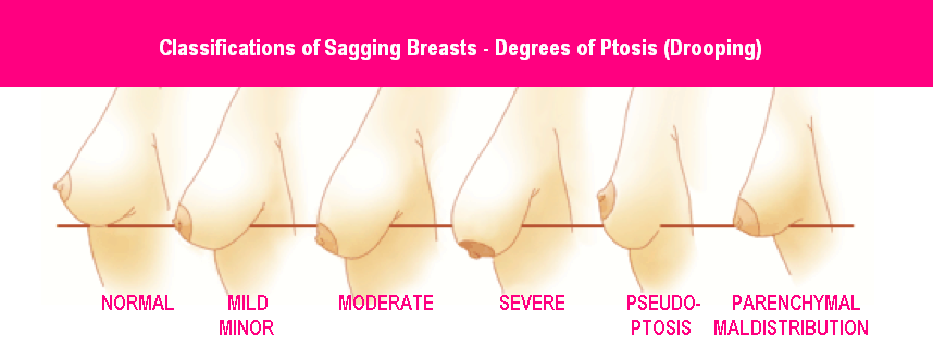 Ptosis - Breast Ptosis degrees of droopiness