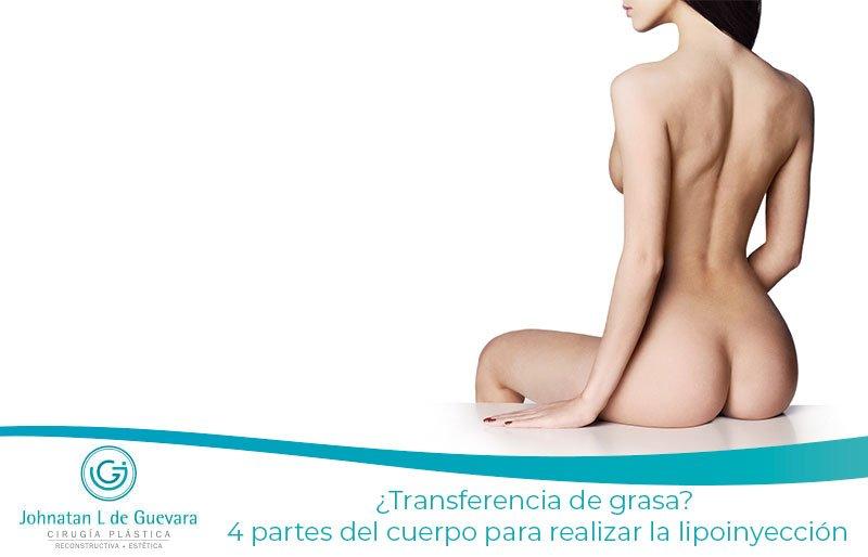 ¿Transferencia de grasa? 4 partes del cuerpo para realizar la lipoinyección