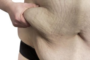 tummy-fat-after-weight-loss