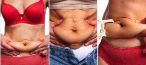 Tummy-tuck-am-i-too-fat-?