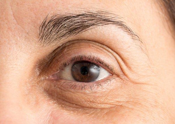 under-eye-bags-shadows-eyelids-surgery