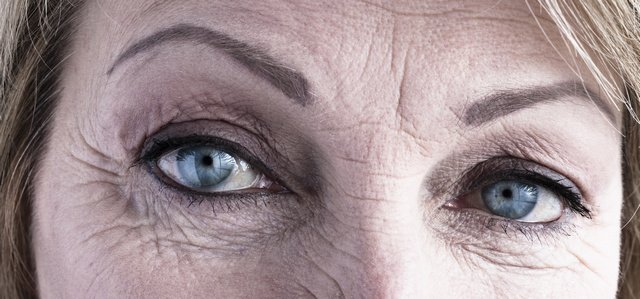 crows feet ageing eyes