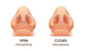 open vs closed rhinoplasty