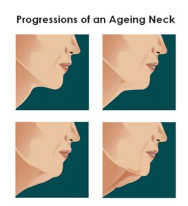 what-are-risks-neck-lift-surgery-facelift.