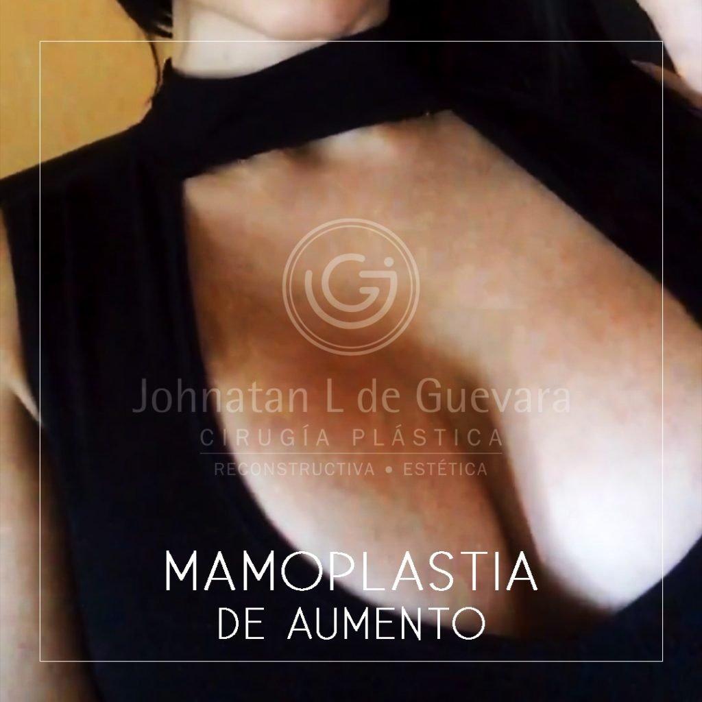 mamoplastia de aumento fotos